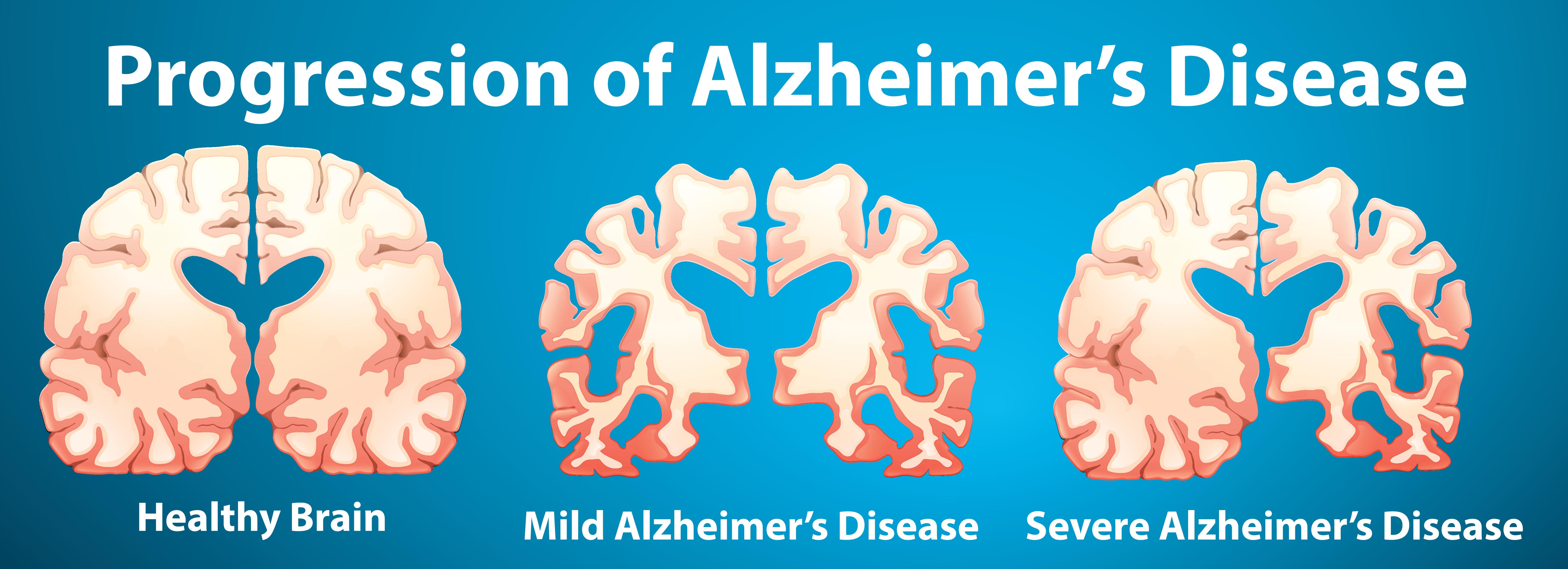 hvorfor dør man af alzheimers